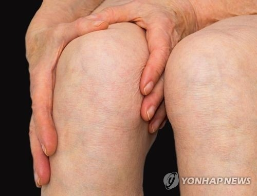 Osteoarthritis patients more susceptible to suicidal impulses: survey - 1