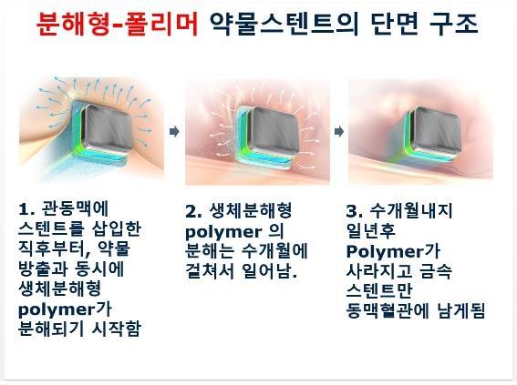 분해형-폴리머 스텐트 단면 구조