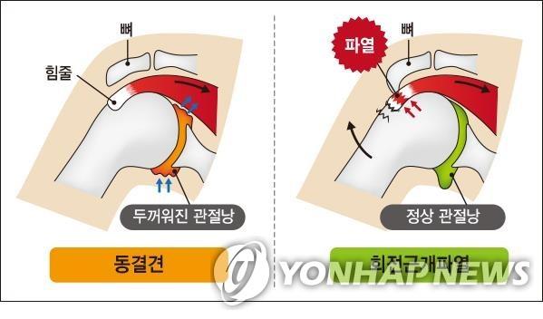오십견과 회전근개파열